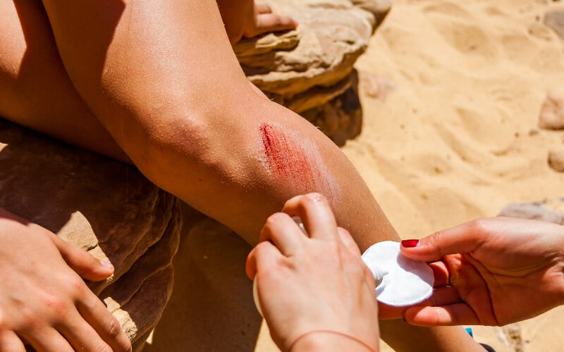 Close up of a person pouring sanitizer on a pad to clean a scraped leg.