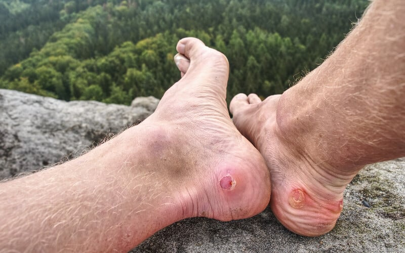Close up of a hiker's feet with blisters on the heels after a trek up a mountain.